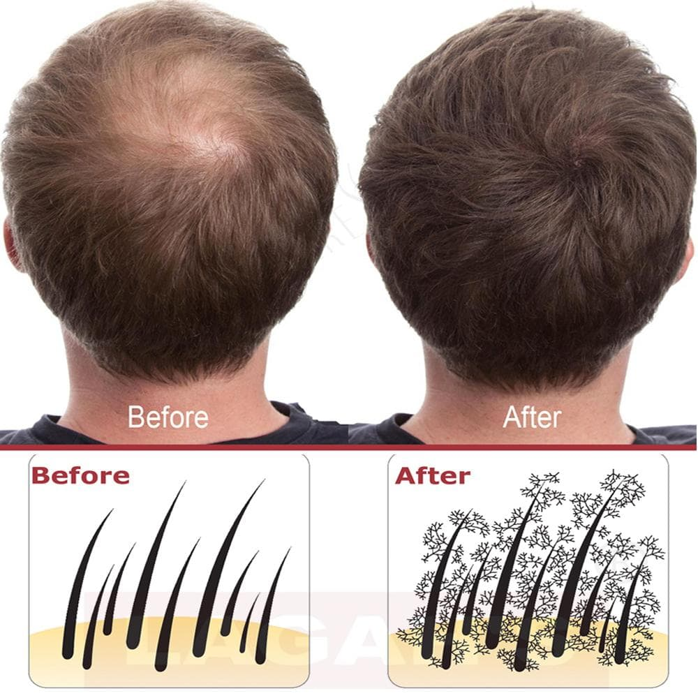 Before and After of Hair Building Fibers